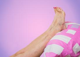 Ортопедические стельки при варикозном расширении вен