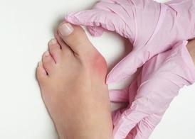Косточка на ноге: как лечить вальгусную деформацию?